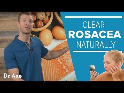Rosacea Treatment: Help Clear Redness Naturally in 7 Steps