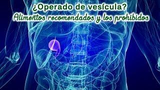 Operado de vescula Dieta saludable Alimentos recomendados y los prohibidos