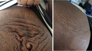 MY POSTPARTUM BODY | Journey back to a flat stomach & small waist