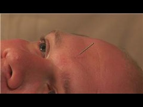Acupuncture Treatments : Can Acupuncture Ease Hay Fever Symptoms?