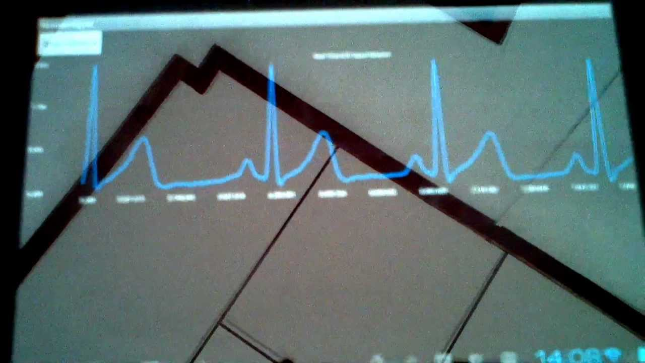 Real-Time ECG monitoring on Android tablet example