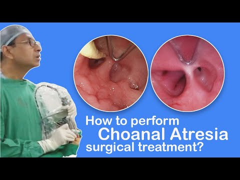 Choanal Atresia - How the Doctor perform this surgical treatment?
