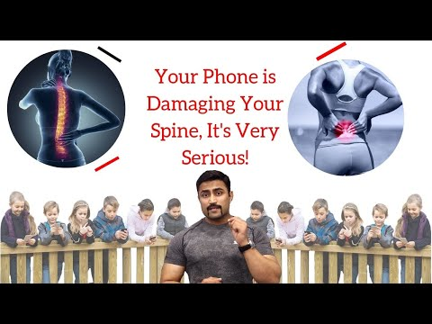 PHONE IS DAMAGING YOUR CERVICAL SPINE-IT'S SERIOUS STUPID