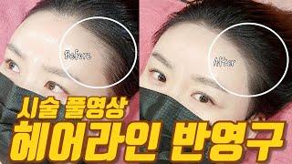 [반영구 화장] 헤어라인 문신 시술풀영상 두피문신 - …