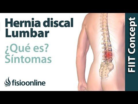 ¿Que es una hernia discal lumbar y cuales son sus sintomas y causas