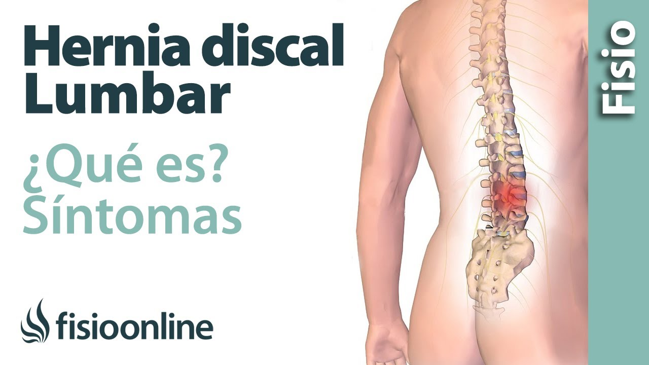 Qué es una hernia discal lumbar y cuáles son sus síntomas y causas ...