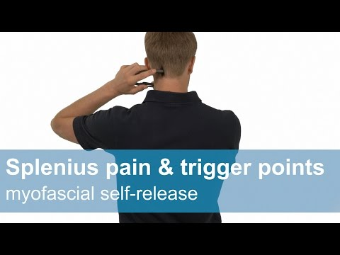 Splenius capitis and cervicis pain & trigger points - Myofascial release