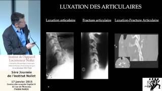 Docteur Philippe Pencalet - Instabilité du rachis cervical