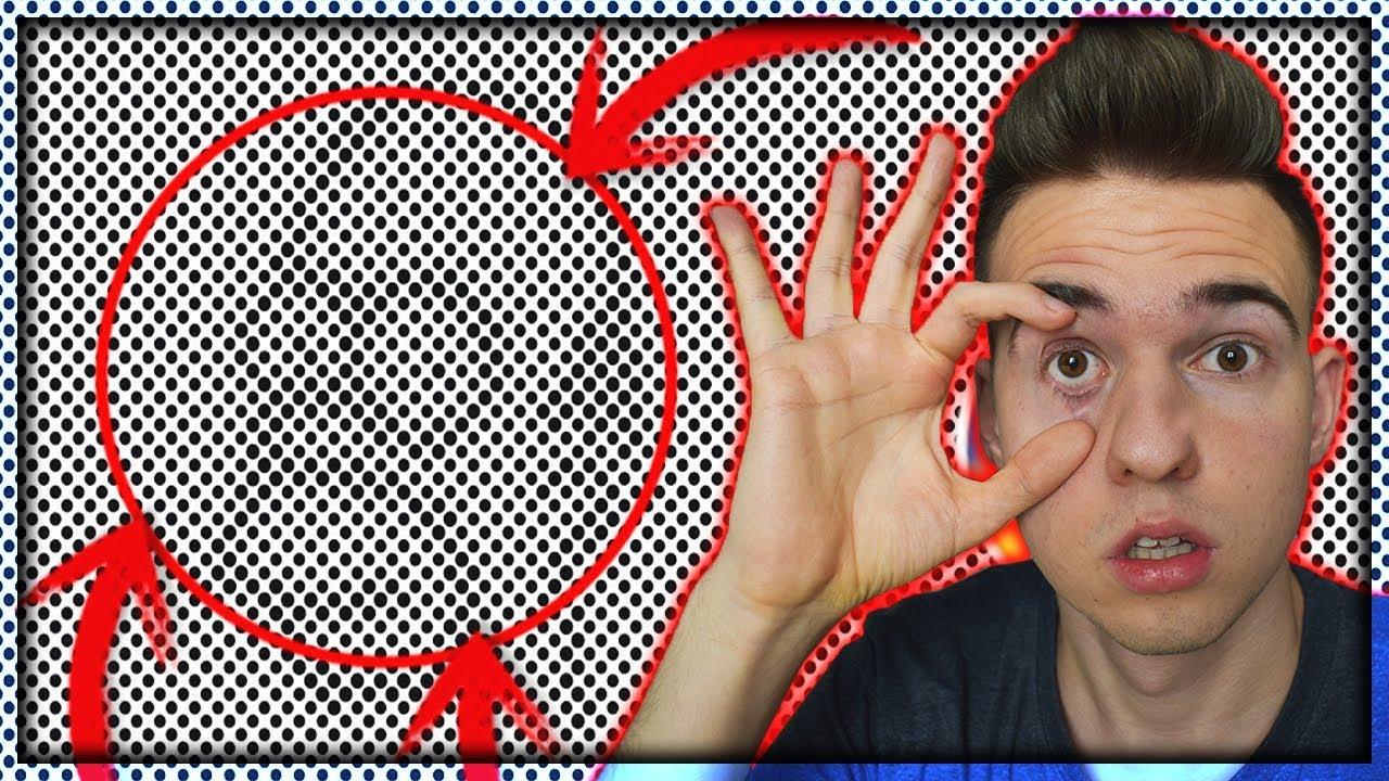 Gyenge látás 18 éves, Binokuláris látás 18 éves korban, Kancsalság