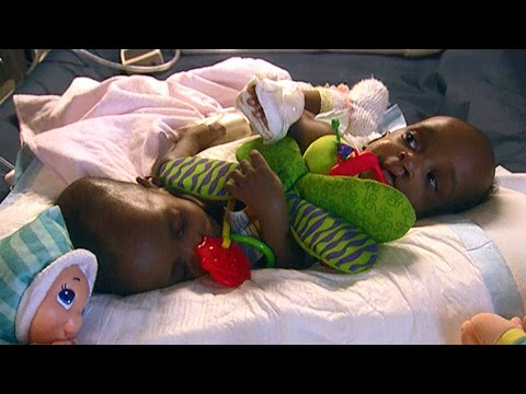 W5 Preview: Conjoined twins saved by life-saving operation in Canada