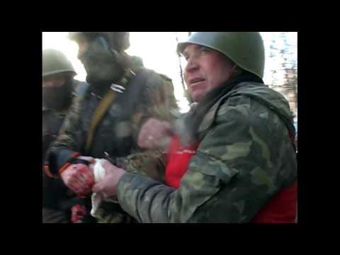 Парню оторвало кисть руки от гранаты на ИНСТИТУТСКОЙ 18. 02. 2014