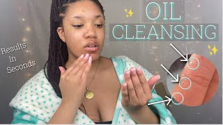 I tried oil cleansing for 30 minutes & THIS happened!| Cleaning your face with oil to clear acne?