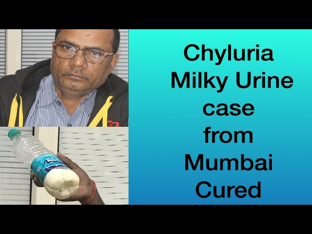 Chyluria Milky Urine Disease Case from Mumbai cured