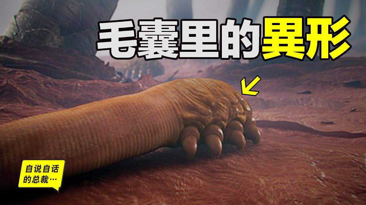 螨蟲:毛囊裡的異形,看完這期你的皮膚會變好……|自說自話的總裁