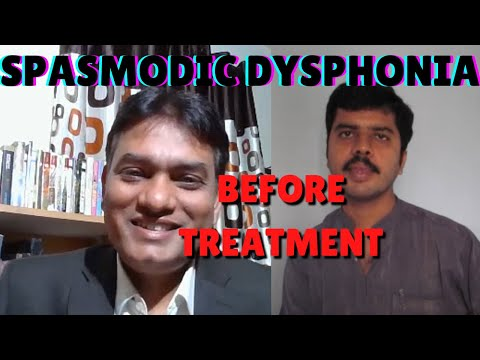 Spasmodic dysphonia before treatment by voice therapist SLP Sanjay AIIMS alumnus in Bangalore,India