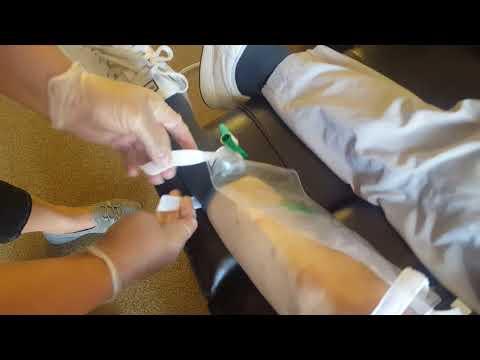 Catheter leg bag change