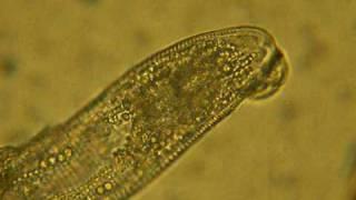 Demodex folliculorum.MOV
