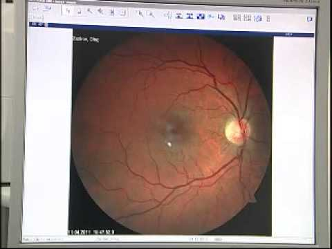 Лазерная коррекция зрения побочный эффект