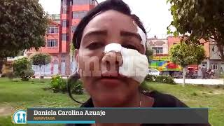 #DiarioLaIndustria   VENEZOLANA DESFIGURADA EN JLO CLAMA JUSTICIA