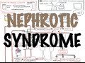 Nephrotic Syndrome - Overview (Sign and symptoms, pathophysiology)