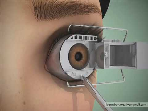 3d Laser Eye Surgery Animation