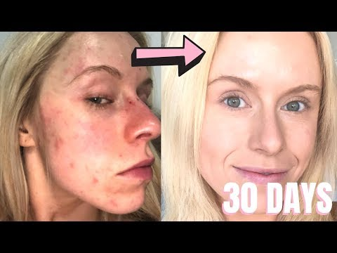 in-30-days-i-fixed-15-years-of-horrible-red-bumpy-dry-pimple--filled-skin-*life-changing*