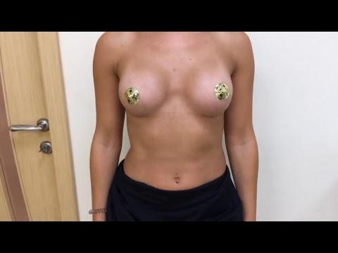 Увеличение груди До и После через 3 месяца