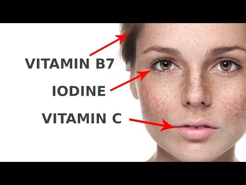 5 Vitamin Deficiency Symptoms On Your Face And How To Fix
