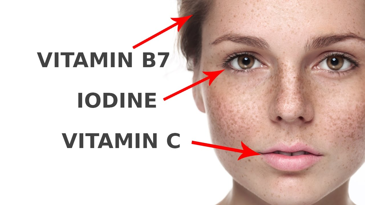 Biotin deficiency facial fat good
