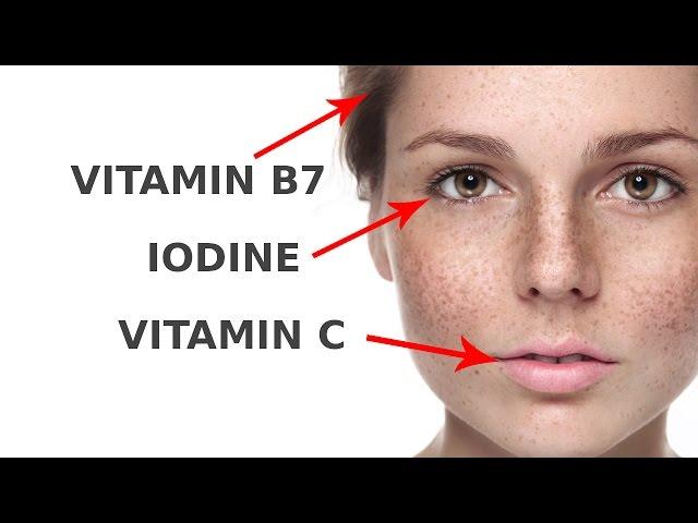 Biotin deficiency facial fat