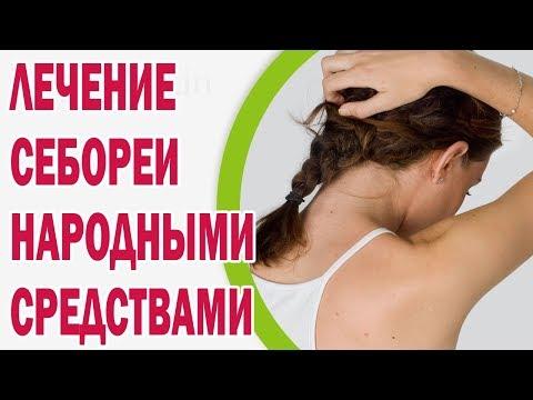 Перхоть и зуд головы - причины, лучший шампунь от перхоти