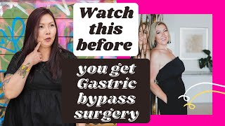 Should I get Gasтric bypass surgery? - pros, cons, reality.