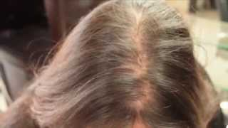 how to stop hair loss in women naturally video