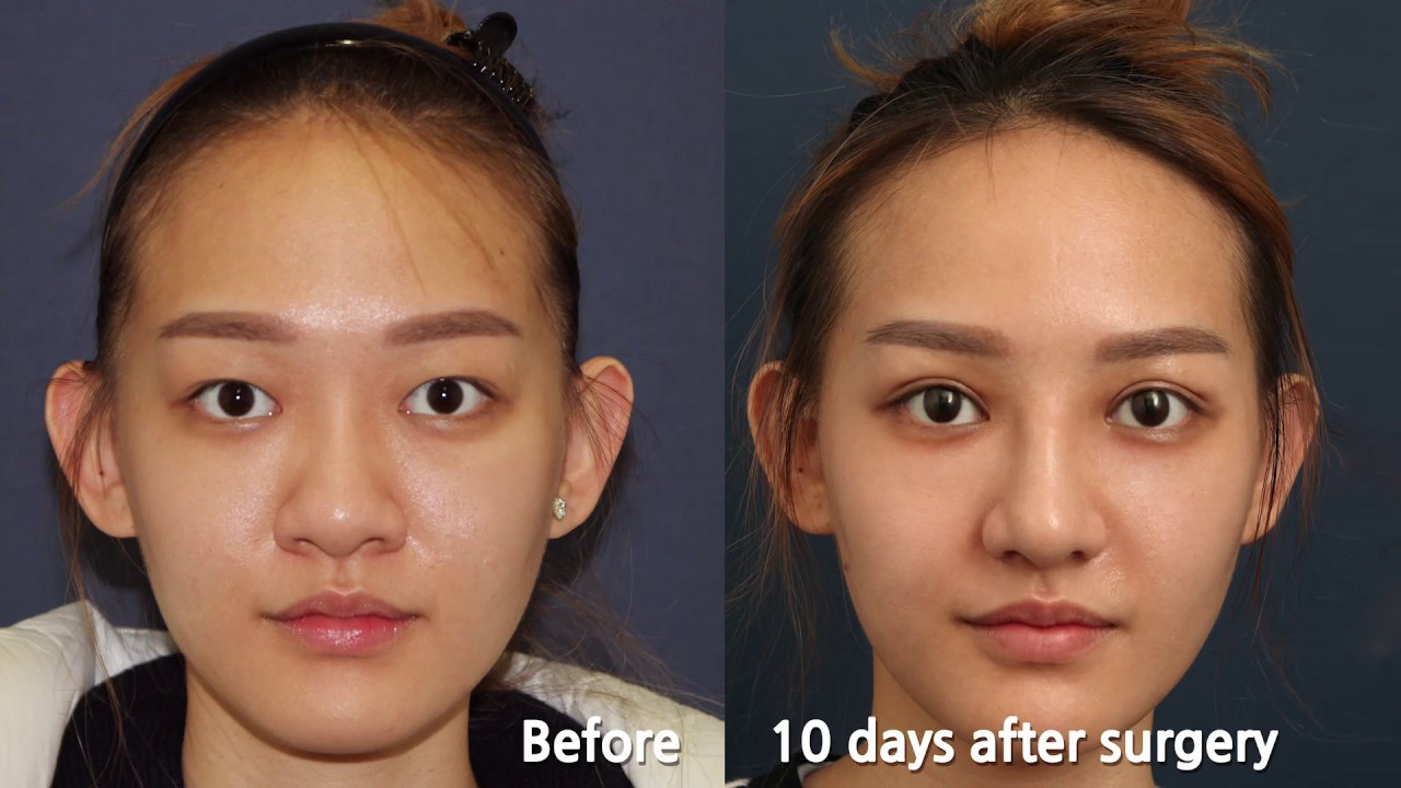 Double Eyelid Surgery In Korea Singaporean Has Eye And