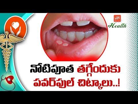 నోటిపూత తగ్గేందుకు పవర్ఫుల్ చిట్కాలు! | Best Tips For Mouth Ulcers | Home Remedies | YOYO TV Health