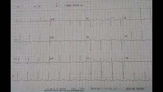 кардиограмма. Синусовая тахикардия