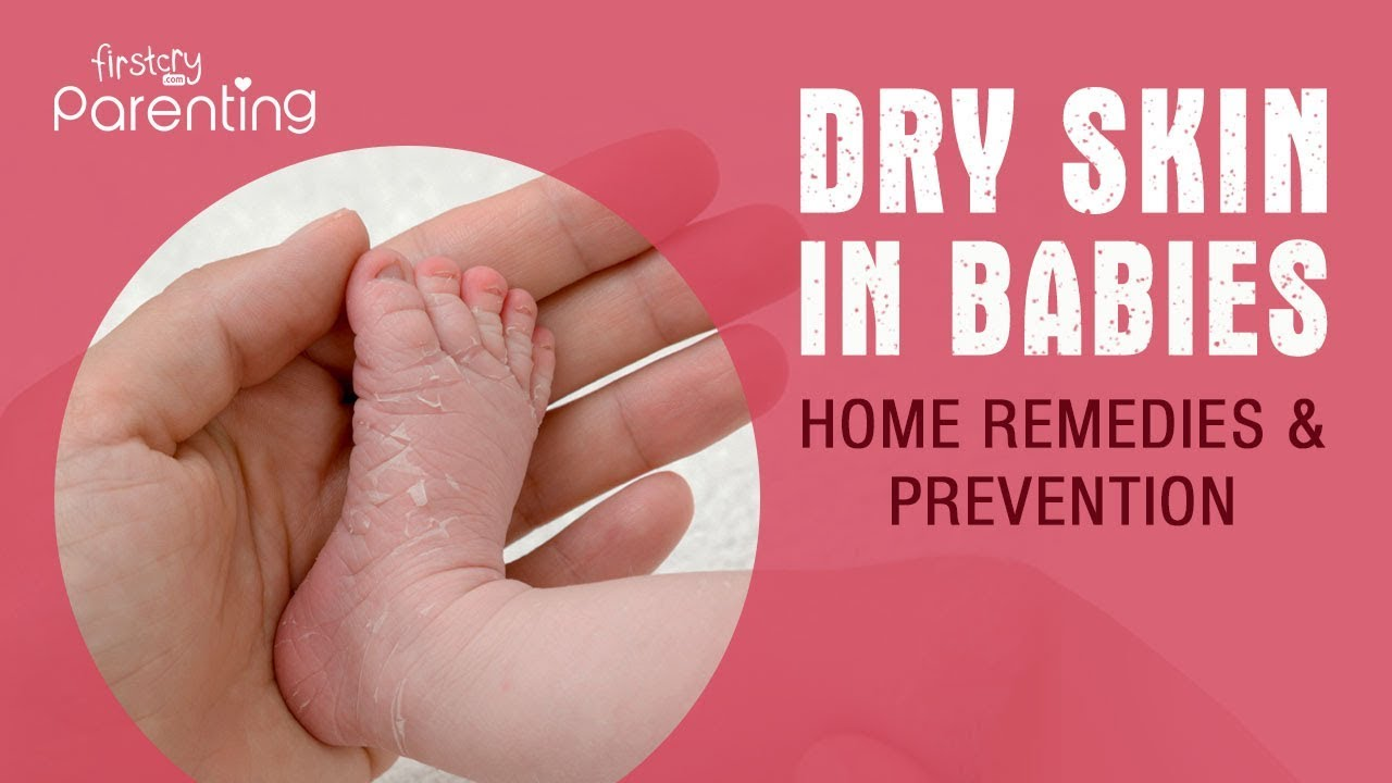 Baby Dry Skin Causes Remedies Prevention Youtube