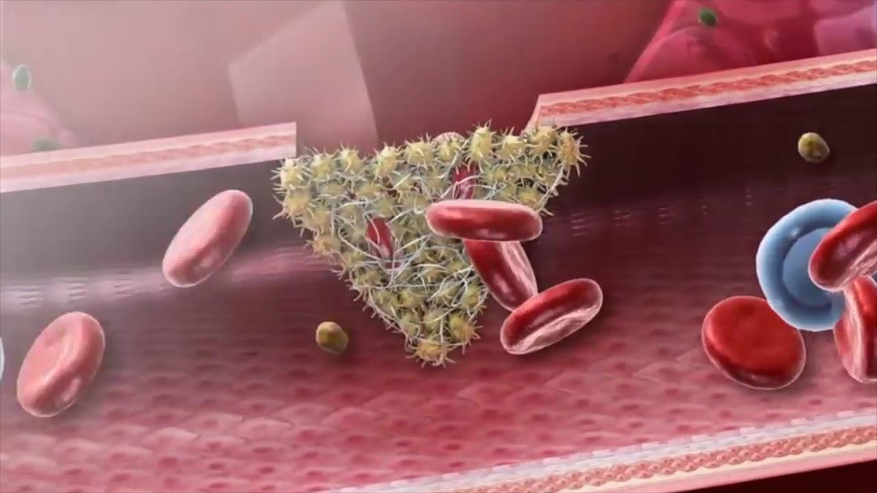 Fibronektiini