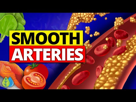 ❣️Top 10 Best Foods to Clean your Arteries (Smooth Arteries)