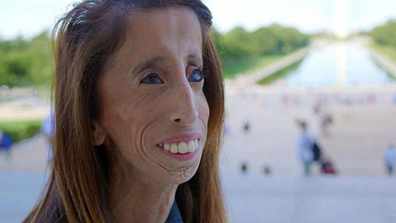 26 Yr Old Is Being Called The Ugliest Woman In The World -6856