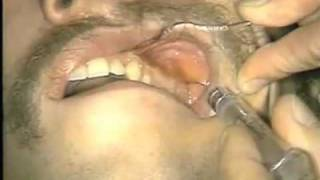 Local Anesthetic Injection Techniques thumbnail