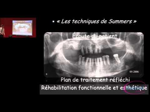 un corps �tranger dans les voies nasales la chirurgie des sinus : voie crestale