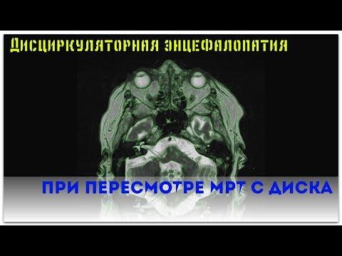 Заключение МРТ головного мозга показало дисциркуляторную энцефалопатию