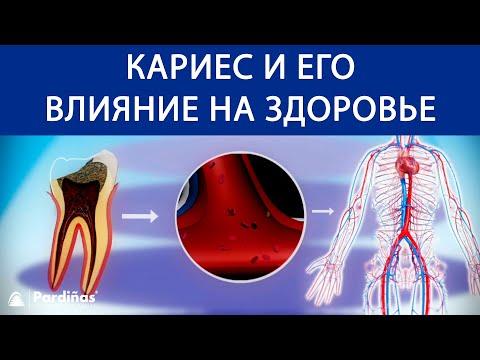 Как влияет кариес на организм человека