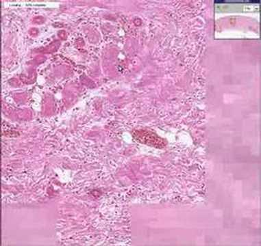 Histopathology Skin -- Dry gangrene - YouTube