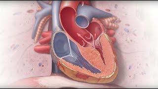 Genetics and Cardiomyopathy - Mayo Clinic