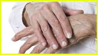 Натуральные средства лечения трещин на руках