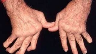 Pengalaman Trigger Finger, Cara Mengobati Sakit Jari Tangan dan Fisioterapi Kasus Trigger Finger.