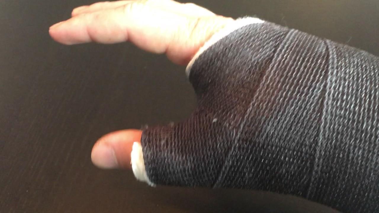 Scapholunate Ligament Tear - 2 Weeks Post Op - Repair (2 of 4) - YouTube