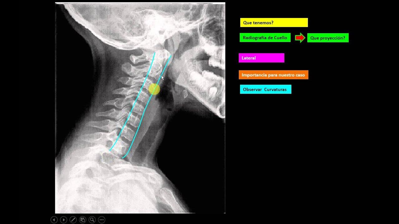 Vistoso Cuello De Radiología Anatomía Componente - Anatomía de Las ...
